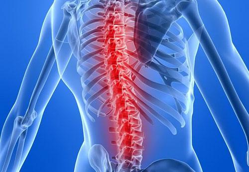 bệnh lao xương khớp là gì