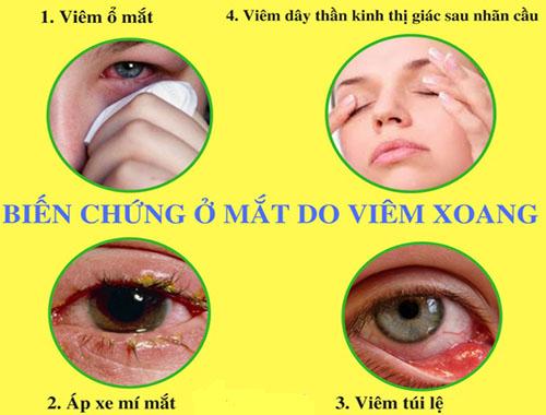 biến chứng viêm xoang ảnh hưởng đến mắt