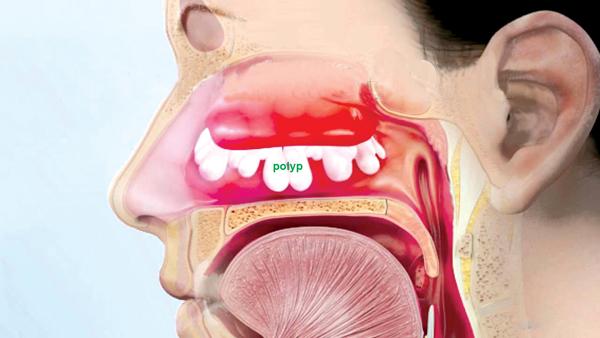 polyp mũi ở người lớn