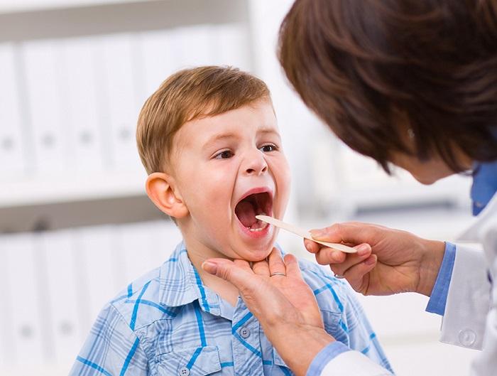 trẻ bị viêm họng cấp tính