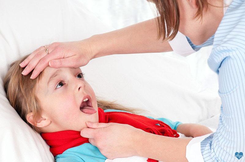 trẻ bị viêm họng sốt nhiều ngày