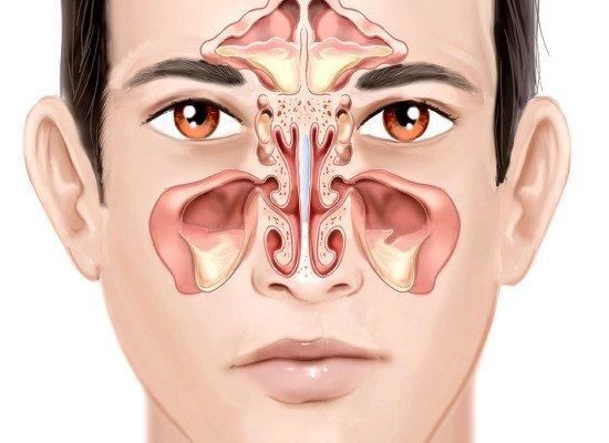 triệu chứng bệnh viêm xoang