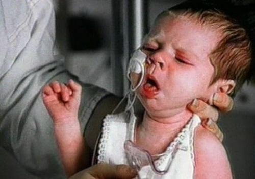 viêm phế quản co thắt trẻ em